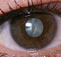 cataract-eye