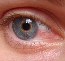 Dry Eye - Snyder Optometry