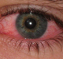 Ocular Allergies - Snyder Optometry